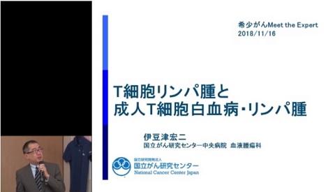 「成人T細胞リンパ腫・白血病とT細胞リンパ腫」伊豆津宏二先生(国立がん研究センター中央病院血液腫瘍科)
