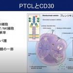 「PTCL(末梢性T細胞リンパ腫)とATL(成人T細胞白血病リンパ腫)の病態と新規治療オンラインセミナー」(講師:石塚賢治先生)動画公開のお知らせ